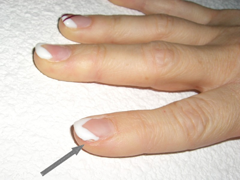 faux ongles qui font mal